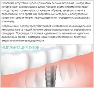 Креатив для рекламы услуги имплантации